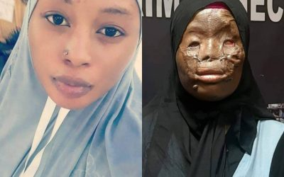 Comment une jolie Ghanéenne a été arrosée d'acide en Arabie saoudite